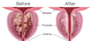 Ozone for Prostate