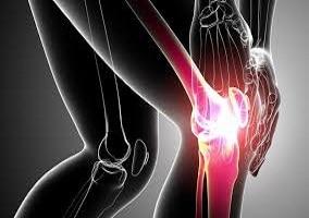 Thermography & Arthritis