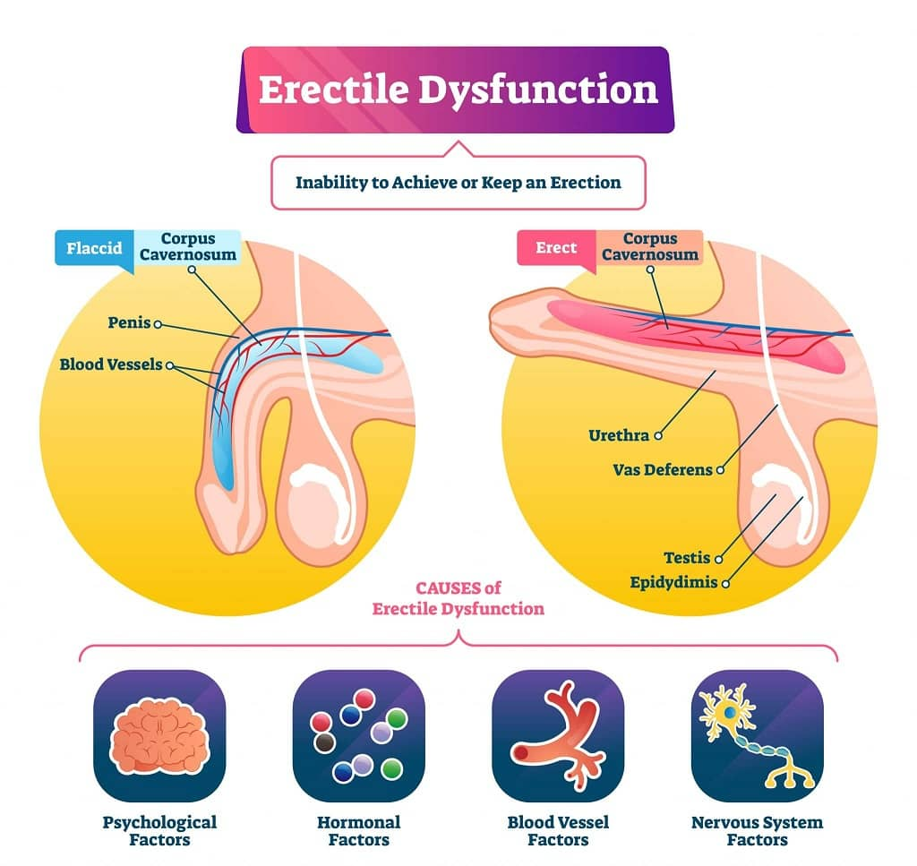 Erectile dysfunction infographic